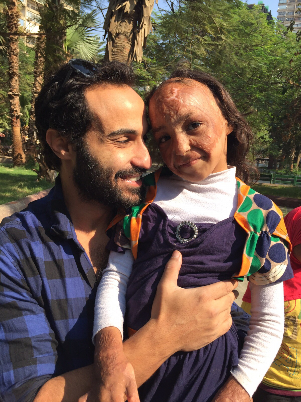 Ahmed Fahmy with burn victim